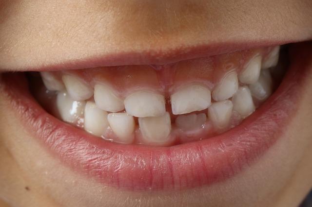 Prawidłowe mycie zębów - naucz tego swojego dziecka.